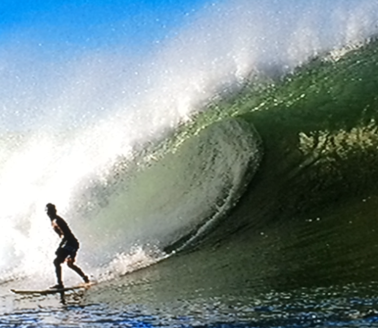 surfing physical therapy