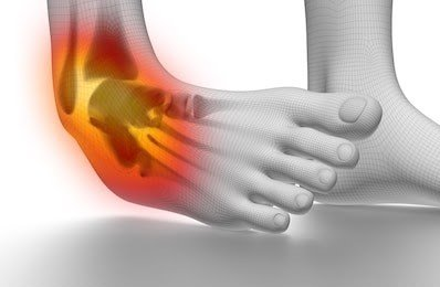 sprained ankle on white 260nw 227120620 Treatment of ankle sprain physical therapy